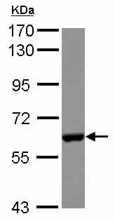 Western blot - Anti-CES2 antibody (ab126970)