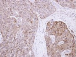 Immunohistochemistry (Formalin/PFA-fixed paraffin-embedded sections) - Anti-RAB11FIP1 antibody (ab127038)