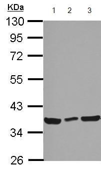 Western blot - Anti-CCDC50 antibody (ab127169)