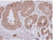 Immunohistochemistry (Formalin/PFA-fixed paraffin-embedded sections) - Anti-CPEB1 antibody (ab127739)