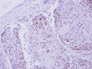 Immunohistochemistry (Formalin/PFA-fixed paraffin-embedded sections) - Anti-ZNF530 antibody (ab127913)