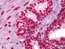 Immunohistochemistry (Formalin/PFA-fixed paraffin-embedded sections) - Anti-Histone H3 antibody (ab128012)