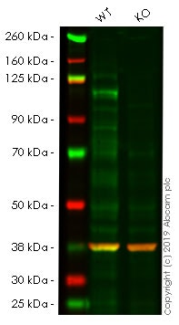 Western blot - Anti-Notch1 antibody [mN1A] (ab128076)