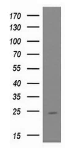 Western blot - Anti-UBE2E3 antibody [OTI4B4] (ab128098)