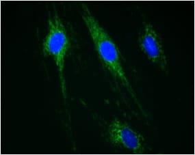 Immunocytochemistry/ Immunofluorescence - Anti-CPT1A antibody [8F6AE9] (ab128568)