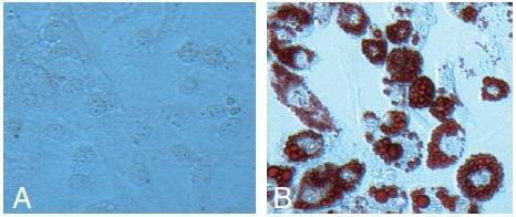 Functional Studies - Adipogenesis Assay Kit (Cell-Based) (ab133102)