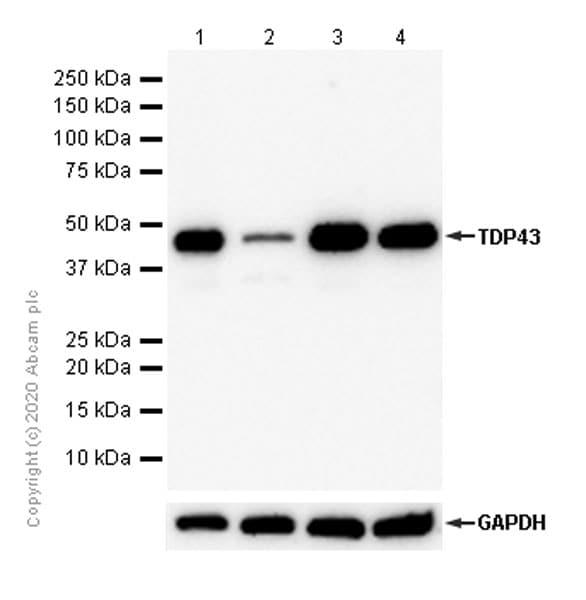 Western blot - Anti-TDP43 antibody [EPR5811] (ab133547)