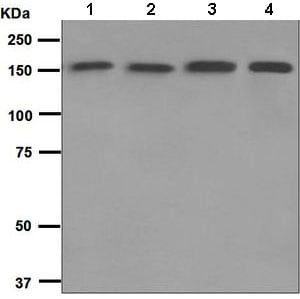Western blot - Anti-Integrin alpha 2 antibody [EPR5788] (ab133557)