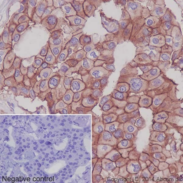 Immunohistochemistry (Formalin/PFA-fixed paraffin-embedded sections) - Anti-Integrin alpha 2 antibody [EPR5788] (ab133557)