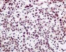 Immunohistochemistry (Formalin/PFA-fixed paraffin-embedded sections) - Anti-PTBP1 antibody [EPR9048(B)] (ab133734)