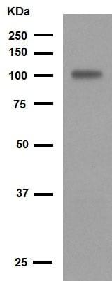 Western blot - Anti-VCAM1 antibody [EPR5047] (ab134047)