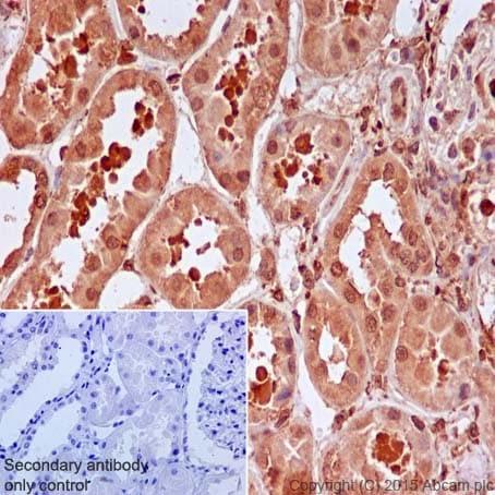 Immunohistochemistry (Formalin/PFA-fixed paraffin-embedded sections) - Anti-IRS2 antibody [EPR904(2)] (ab134101)