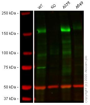 Western blot - Anti-IRS2 antibody [EPR904(2)] (ab134101)