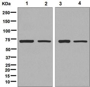 Western blot - Anti-SDHA antibody [EPR9043(B)] (ab137040)
