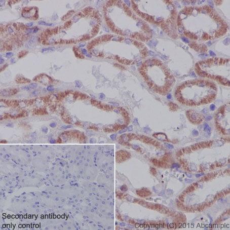 Immunohistochemistry (Formalin/PFA-fixed paraffin-embedded sections) - Anti-SDHA antibody [EPR9043(B)] (ab137040)