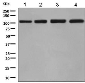 Western blot - Anti-BRD2 antibody [EPR7642] - ChIP Grade (ab139690)