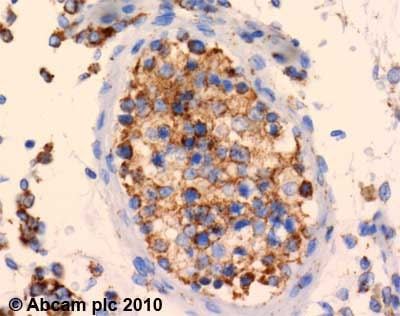 Immunohistochemistry (Formalin/PFA-fixed paraffin-embedded sections) - Anti-SDHA antibody [2E3GC12FB2AE2] (ab14715)