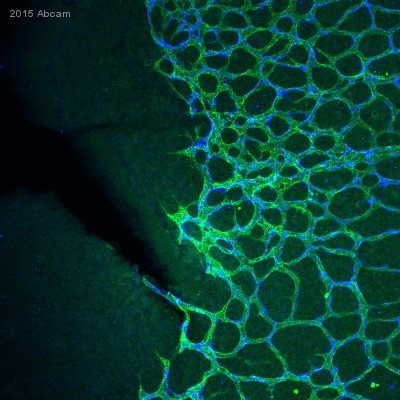 IHC - Wholemount - Anti-Desmin antibody - Cytoskeleton Marker (ab15200)