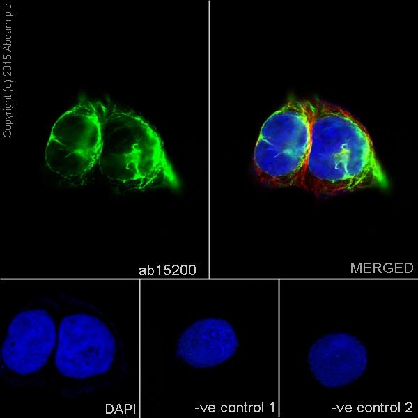 Immunocytochemistry/ Immunofluorescence - Anti-Desmin antibody - Cytoskeleton Marker (ab15200)