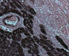 Immunohistochemistry (Formalin/PFA-fixed paraffin-embedded sections) - Anti-Desmin antibody - Cytoskeleton Marker (ab15200)