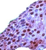 Immunohistochemistry (Formalin/PFA-fixed paraffin-embedded sections) - Anti-ROC1 antibody, prediluted (ab15517)