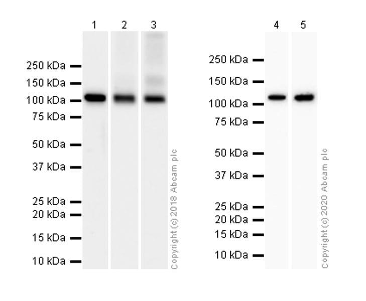 Western blot - Anti-Hexokinase 1 antibody [EPR10134(B)] - Mitochondrial Outer Membrane Marker (ab150423)