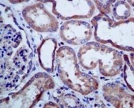 Immunohistochemistry (Formalin/PFA-fixed paraffin-embedded sections) - Anti-SERCA2 ATPase antibody [EPR9392] (ab150435)