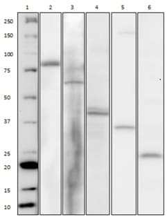 Western Blot for AKT/MAPK Signaling Pathway Cocktail– Component Separation