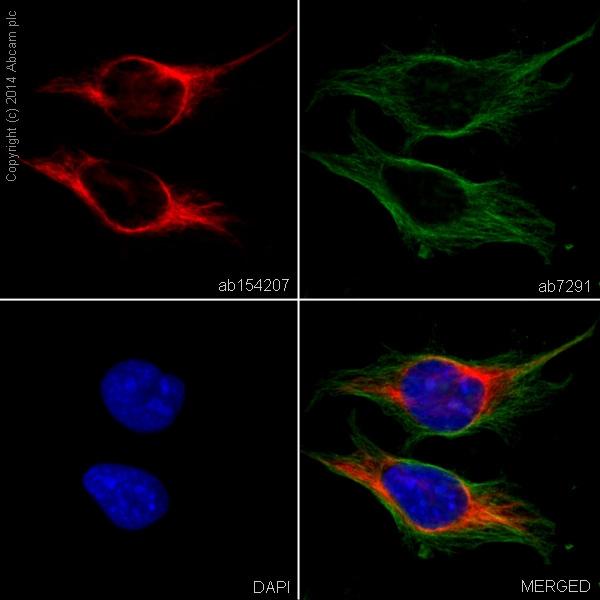 Immunocytochemistry/ Immunofluorescence - Anti-Vimentin antibody [EPR3776] - Cytoskeleton Marker (Alexa Fluor® 594) (ab154207)