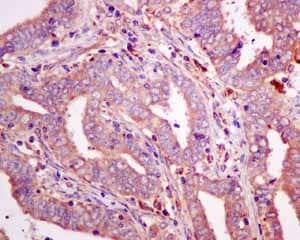 Immunohistochemistry (Formalin/PFA-fixed paraffin-embedded sections) - Anti-GUCY1B3 antibody [EPR8822] (ab154841)
