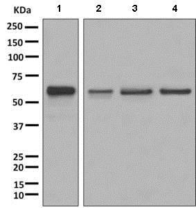 Western blot - Anti-Glutaminase antibody [EP7212] (ab156876)