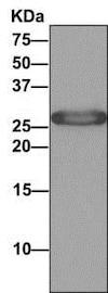 Immunoprecipitation - Anti-SPR antibody [EPR9290] (ab157194)