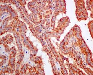 Immunohistochemistry (Formalin/PFA-fixed paraffin-embedded sections) - Anti-SPR antibody [EPR9290] (ab157194)