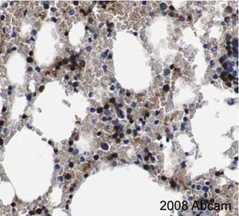 Immunohistochemistry (Formalin/PFA-fixed paraffin-embedded sections) - Anti-SOCS3  antibody (ab16030)