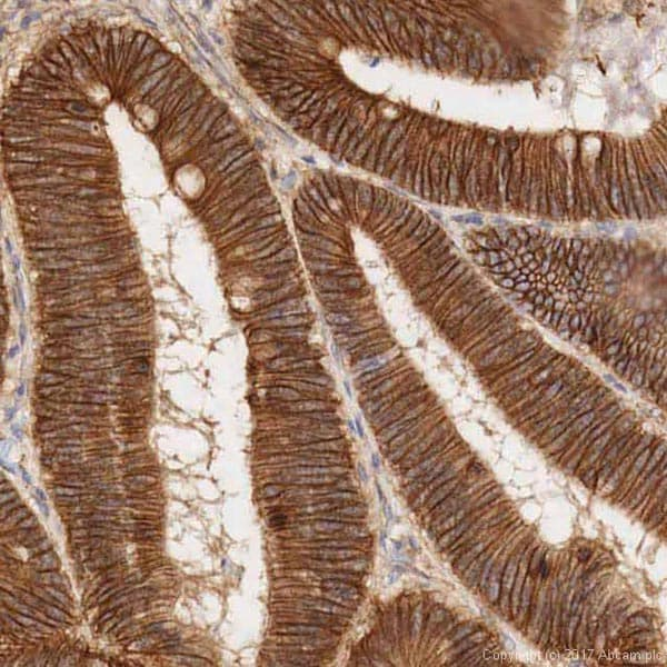 Immunohistochemistry (Formalin/PFA-fixed paraffin-embedded sections) - Anti-beta Catenin antibody (ab16051)