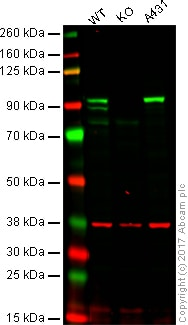 Western blot - Anti-beta Catenin antibody (ab16051)