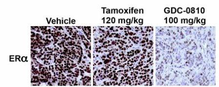 Immunohistochemistry (Formalin/PFA-fixed paraffin-embedded sections) - Anti-Estrogen Receptor alpha antibody [SP1] (ab16660)