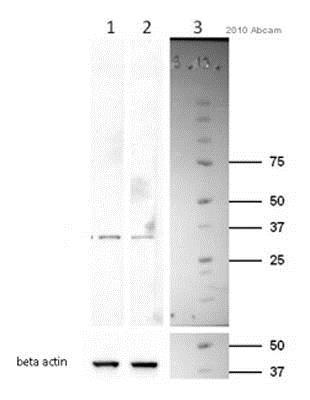 Western blot - Anti-Cyclin D1 antibody [SP4] (ab16663)
