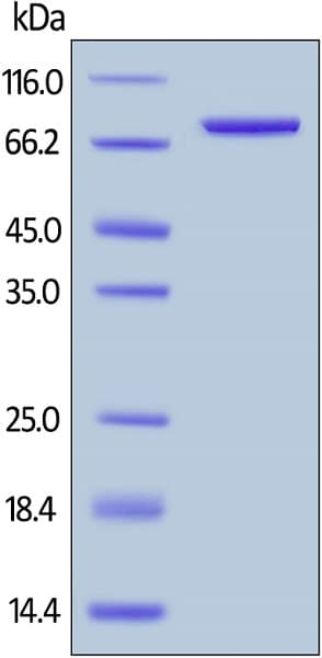 SDS-PAGE - Recombinant human CD4 protein (ab167756)