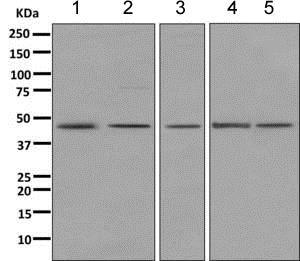 Western blot - Anti-PDHA1 antibody [EPR11098] (ab168379)