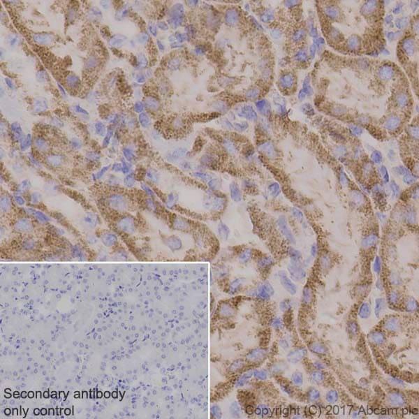 Immunohistochemistry (Formalin/PFA-fixed paraffin-embedded sections) - Anti-PDHA1 antibody [EPR11098] (ab168379)