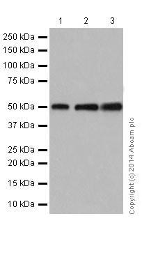 Western blot - Anti-beta Tubulin antibody [EPR16774] (ab179513)