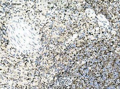 Immunohistochemistry (Formalin/PFA-fixed paraffin-embedded sections) - Anti-PCNA antibody (ab18197)