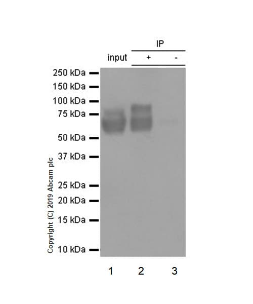 Immunoprecipitation - Anti-Choline Acetyltransferase antibody [EPR13024(B)] (ab181023)