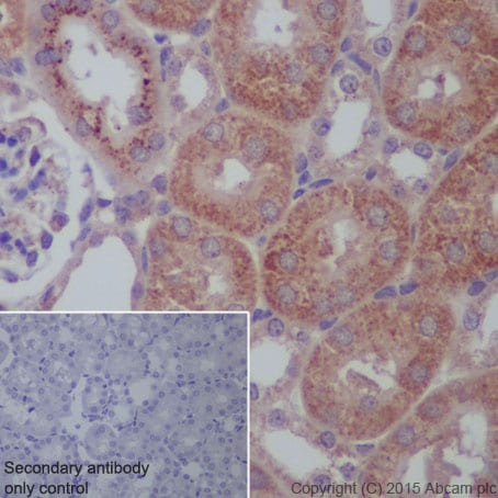 Immunohistochemistry (Formalin/PFA-fixed paraffin-embedded sections) - Anti-CPT2 antibody [EPR13626] - C-terminal (ab181114)