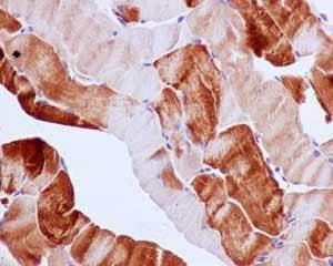 Immunohistochemistry paraffin embedded sections - Anti-G3BP antibody [EPR13985(B)] (ab181149)