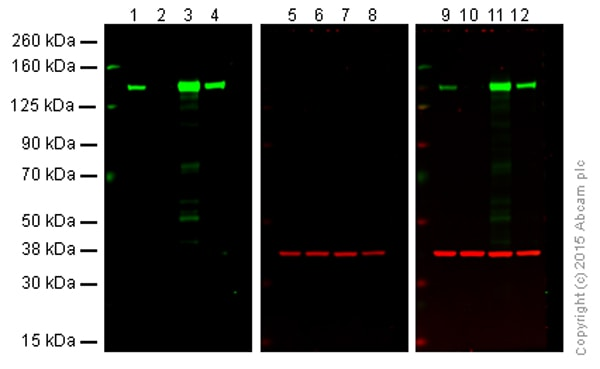 Western blot - Anti-Integrin alpha 2 antibody [EPR17338] - C-terminal (ab181548)