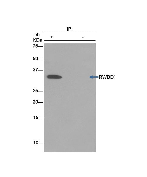 Immunoprecipitation - Anti-RWDD1 antibody [EPR13715(B)] (ab181994)