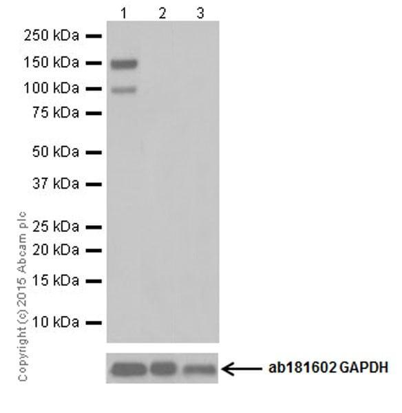 Western blot - Anti-Phospholipase C beta 1/PLCB1 antibody [EPR19085] (ab182359)