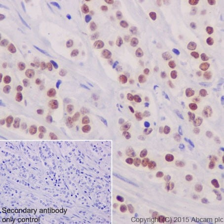 Immunohistochemistry (Formalin/PFA-fixed paraffin-embedded sections) - Anti-GATA2 + GATA3 antibody [EPR17874] (ab182747)